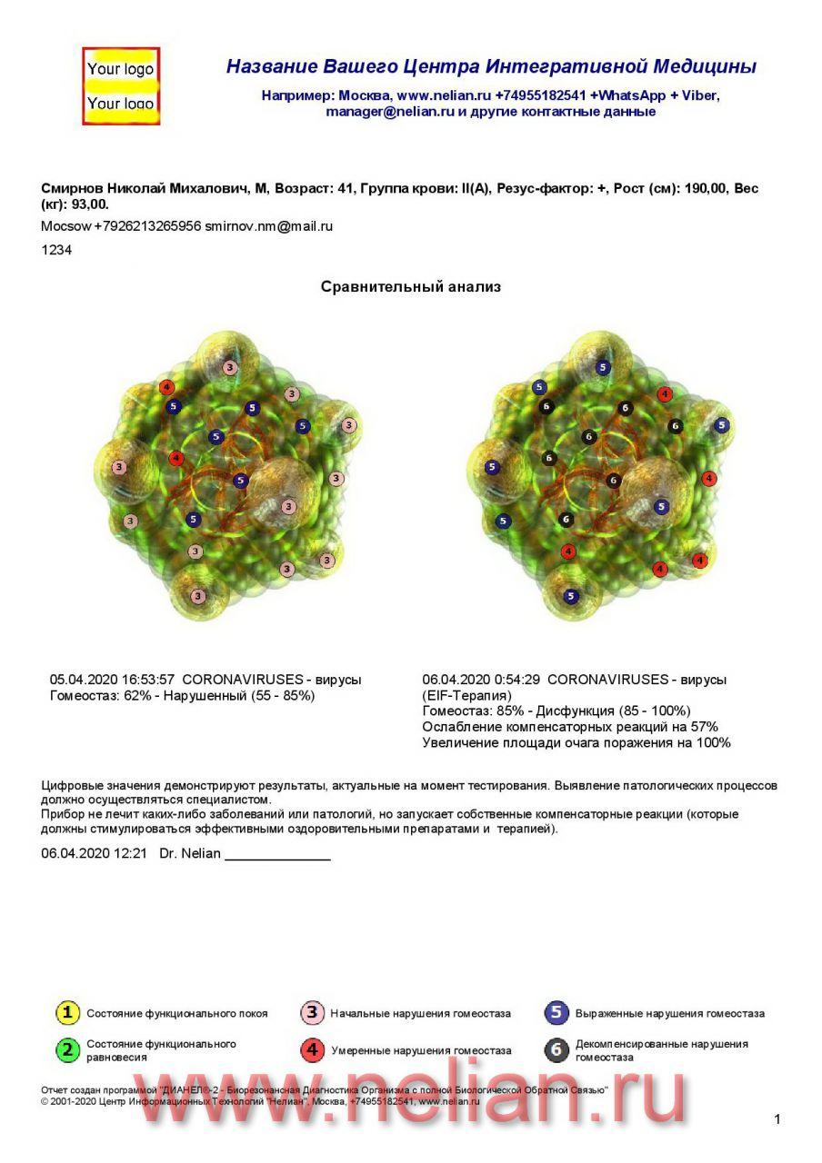 Возможности сеанса Биорезонансной Эндогенной EIF-терапии (Энергоинформационное Частотное воздействие) на примере Коронавируса