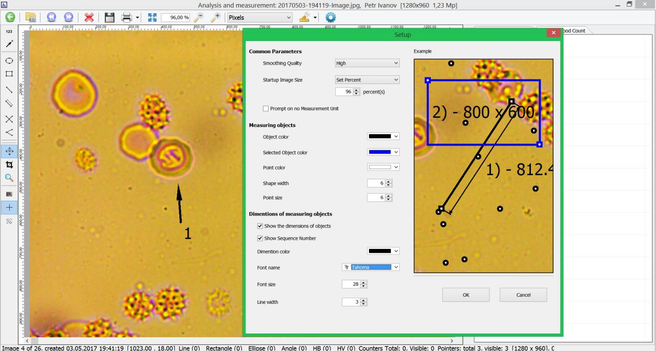Dianel-Micro Live Blood Analysis Software, for digitaldark field microscope with Digital Camera, hi detailes level,microorganisms and helminths detection with extra magnification8000 x zoom